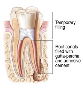 Illustration shows a section through a root canal anatomically