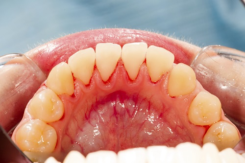 Picture of teeth with gum disease